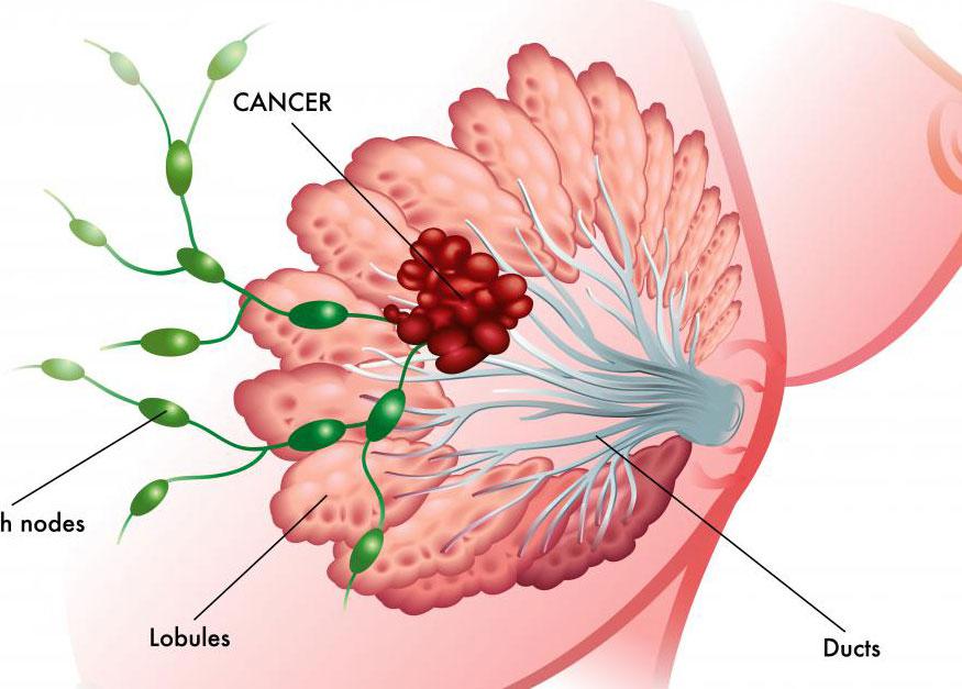 Исследования с участием женщин с раком молочной железы показали некоторое уменьшение опухоли при воздействии высоких уровней коэнзима Q10.