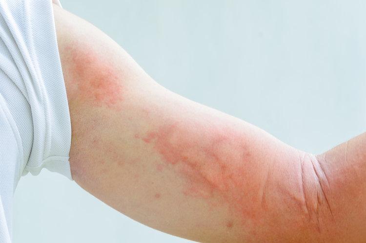 Что вызывает сыпь при раке?