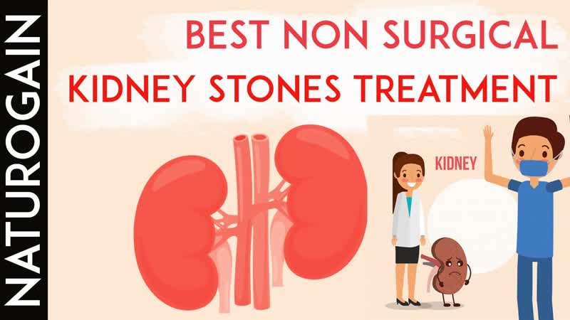 Best Non Surgical Treatment for Kidney Stones [WITHOUT] Pain
