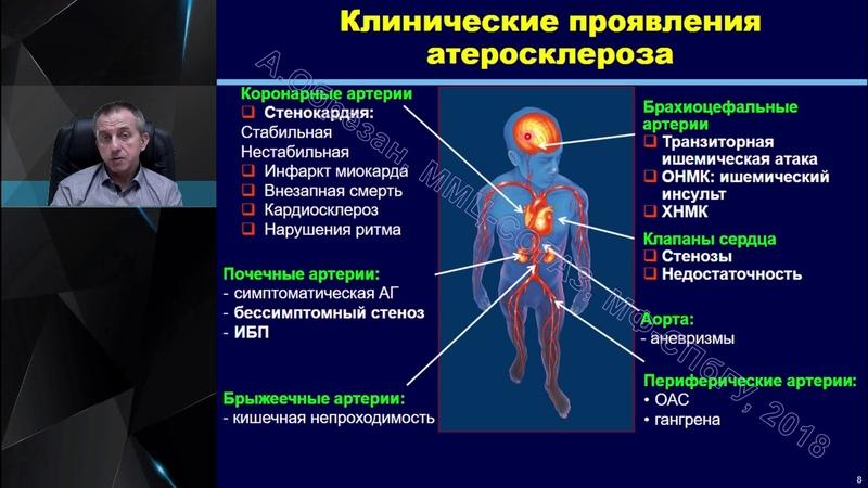 Хроническая болезнь почек глазами кардиолога