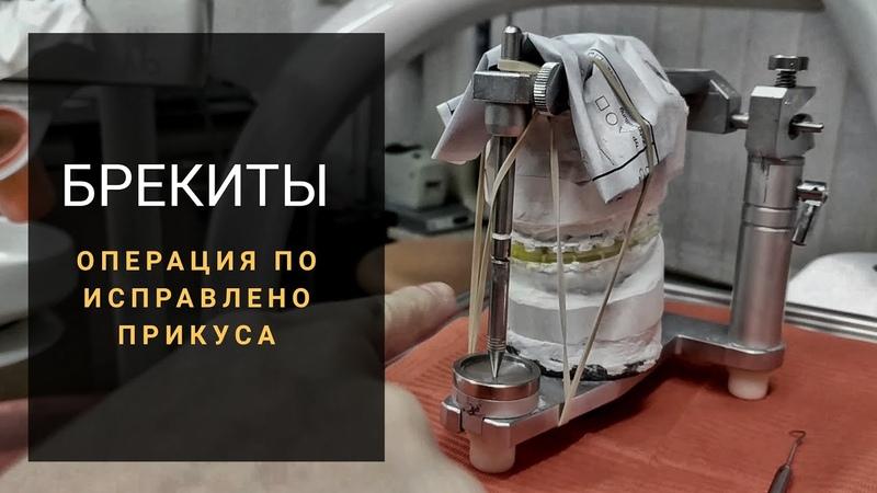 Подготовка к Операция по исправлению прикуса. Ортодонтия исправление прикуса. Дистальный прикус