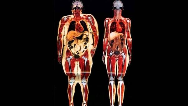 Все еще верите в широкую кость Слева 113 кг веса, справа  54 кг.
