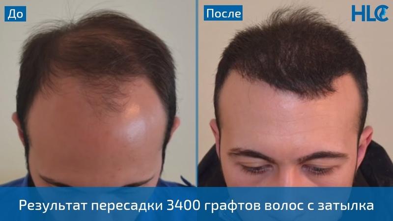 Пересадка 3400 графтов волос мужчине на голову с затылка