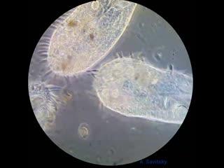 Инфузория urostyla. фазовый контраст. 630х