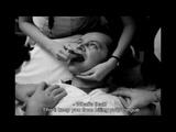 2. Treatment schizophrenia with electric shock, kf