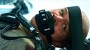Крюгеру восстанавливают лицо с помощью технологий Элизиума. Элизиум: Рай не на Земле (2013) год.