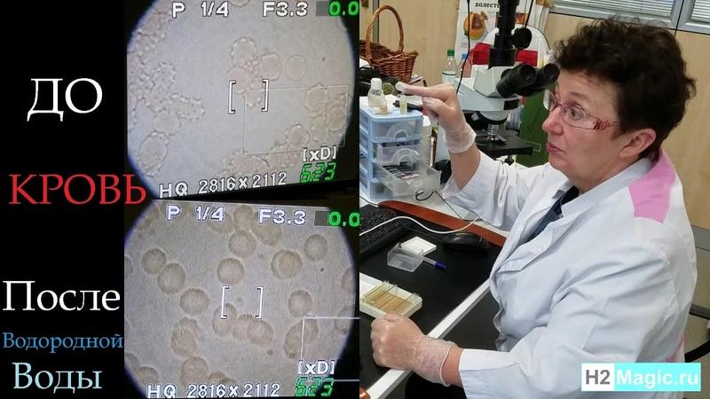 H2Magic Тест с микроскопом. Так быстро свежая водородная вода восстанавливает эритроциты лейкоциты.