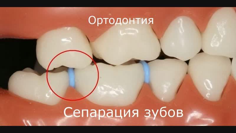 Сепарация. Демо - ролики. Пропедевтика ортодонтии