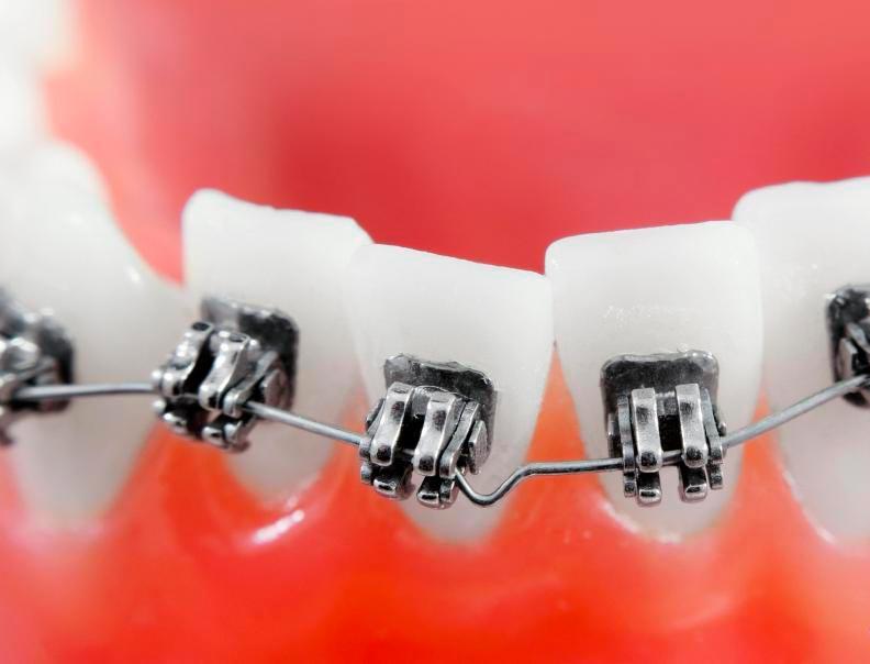 Стоматологические брекеты бывает трудно чистить с помощью традиционных зубной щетки, особенно для детей.