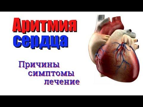Аритмия сердца. Причины, симптомы и лечение