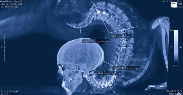 Позвоночник акробата, рентген