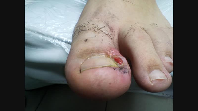 Краевая клиновидная резекция вросшего ногтя