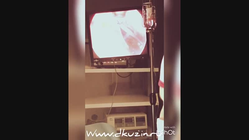 Эндоскопическая подтяжка лба