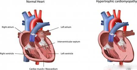 Гипертрофическая кардиомиопатия может возникнуть, когда сердечная мышца становится толстой.Сердечная кардиомиопатия ➤