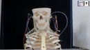 Multifilament Artificial Muscles to Mimic the Human Neck