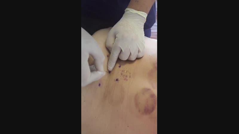 процедура иглоножа от Доктора Лю октябре 2018г.