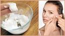✅Это средство избавит вас от угрей и прыщей, сбалансируя pH кожи!