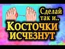 ☘ КОСТОЧКИ на ногах ИСЧЕЗНУТ ☘ Как избавиться от шишки на большом пальце