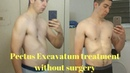 Pectus excavatum treatment without surgery how to get rid of pectus excavatum at home