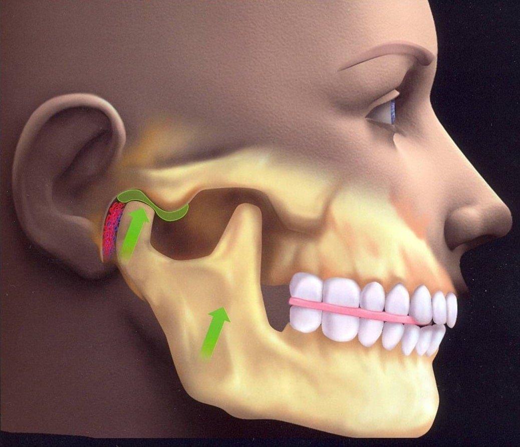adderall jaw movement