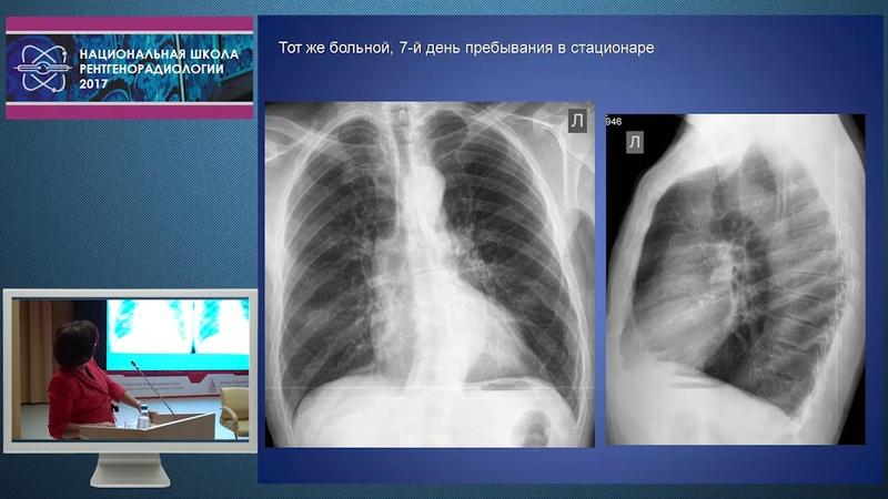И.З. Коробкова - Возможности рентгенологического исследования в оценке сердечной недостаточности