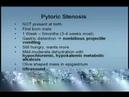 Ch 14 03 Vomiting Pediatrics Kaplan UMSLE Step 2 MedicalTube