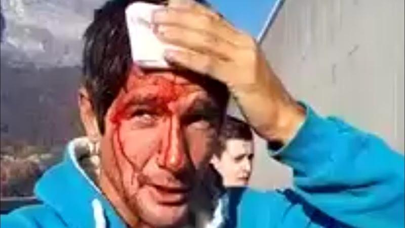 Gilets Jaunes Un Manifestant Se fait frapper par les CRS