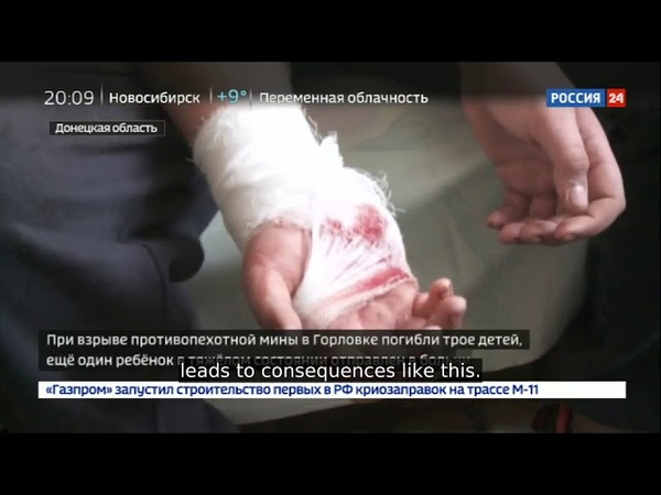 Strange Ceasefire Indeed Victim Count Ticks Up After Ukr Shelling More Dead Donbass Children
