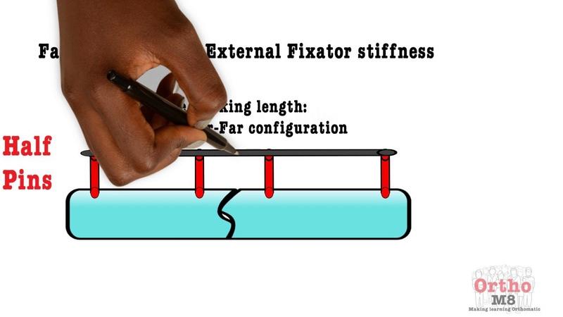 Basic Sciences - Factors increasing External Fixator stiffness