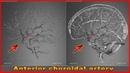 Anterior choroidal artery | Arteries of head and neck | 3D Human Anatomy | Organs