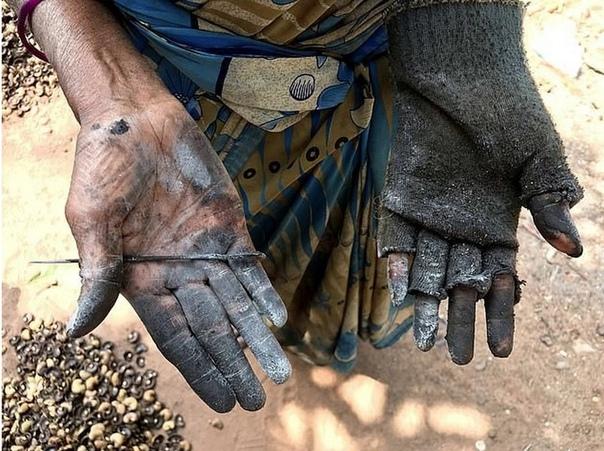 Чего стоит сбор кешью обожженные руки за 2 фунта в день Кешью - очень вкусные и полезные орехи. Благодаря высокому содержанию углеводов, белков, витаминов А, В1, В2 и микроэлементов их часто