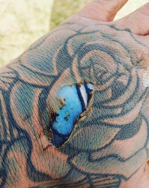 Один мужчина обжег руку, на которой была старая татуировка. Когда кожа стала слезать, он с изумлением увидел, что из-под нее проглядывают былые яркие краски рисунка. И это не фейк и не фотошоп,