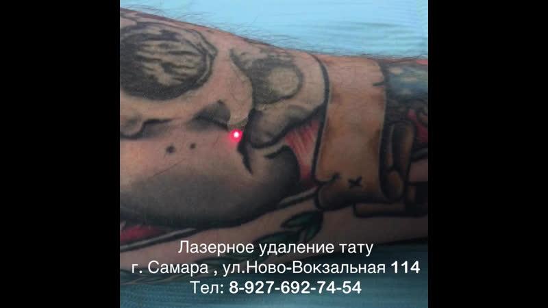 Лазерное удаление татуировок в Самаре - Laser Freestyle