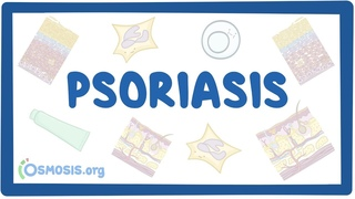 Psoriasis - causes, symptoms, diagnosis, treatment, pathology