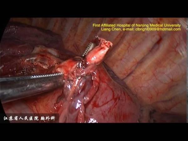 VATS Left S8 Segmentectomy