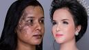 Da Lang Ben Nám Môi Thâm Đen Trang Điểm Sao Cho Đẹp Hùng Việt Makeup