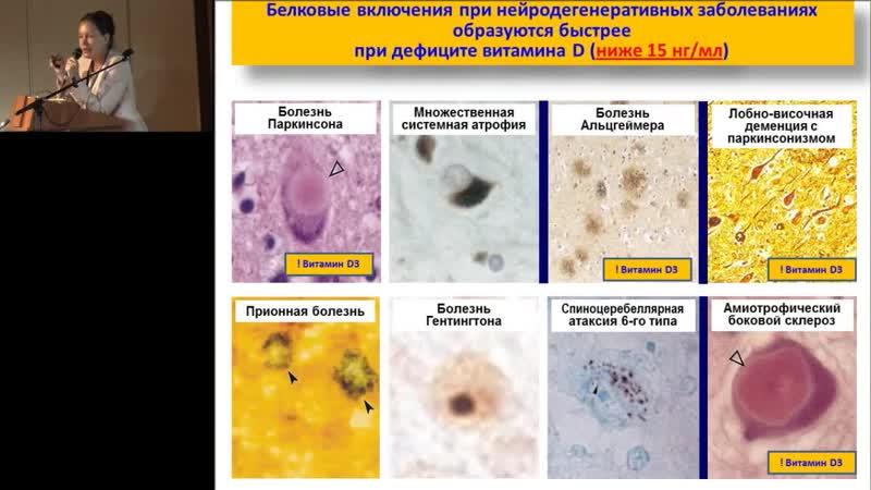 14 02 2015 Громова О А Актуальные аспекты клинической и молекулярной фармакол