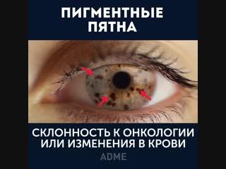 Глаза могут рассказать очень много о вашем здоровье!