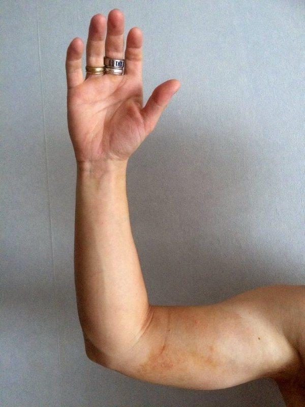 ykiUAoX8Qk - Что делать если укусила гадюка