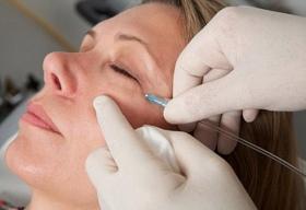 При карбокситерапии углекислый газ вводится под кожу.