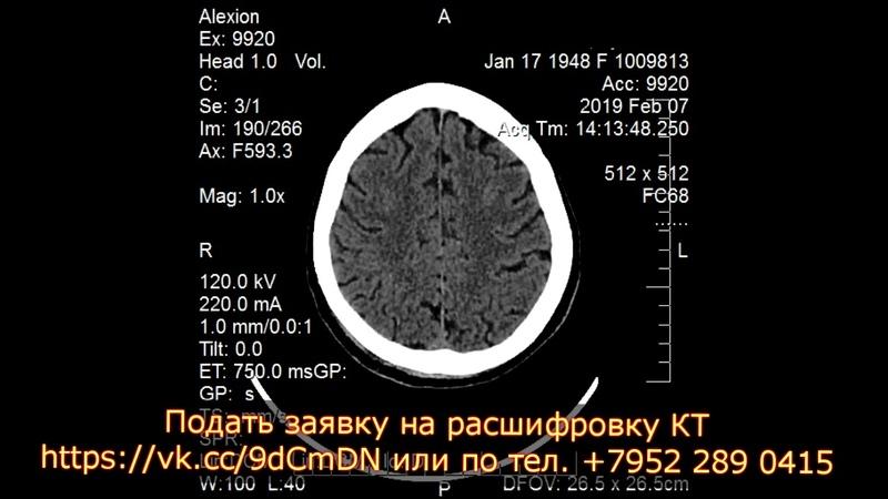 Подкожная гематома мягких тканей затылочной области на КТ головного мозга расшифровке