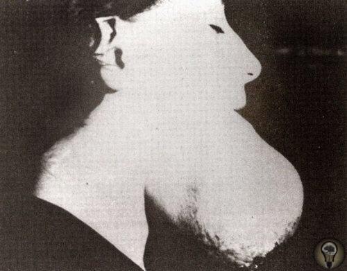 Радийные девушки были художниками по циферблатам, которые рисовали радием на циферблатах часов В последствии у них развились очень серьезные проблемы со здоровьем, такие как вызванная радием