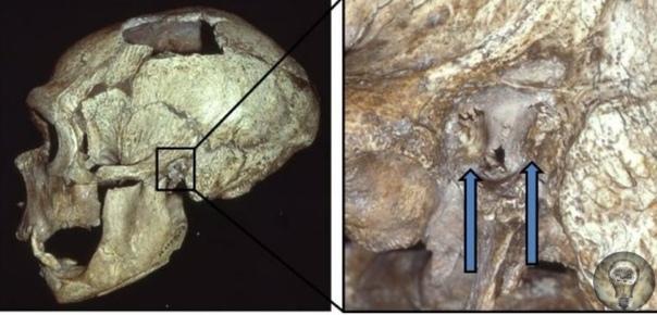 Древние неандертальцы страдали «ухом сёрфера»