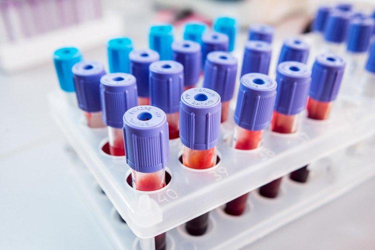 анализ крови расшифровка