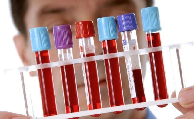 Анализ крови расшифровка: общий, норма для взрослых в таблице