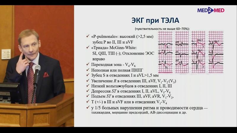 Диагностика и лечение ТЭЛА Гаврилов Ю В