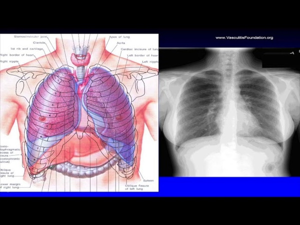 2017 International Vasculitis Symposium: Ulrich Specks, MD - Vasculitis and Your Breathing