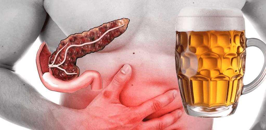 Не правильное питание, алкоголь и ЖКТ