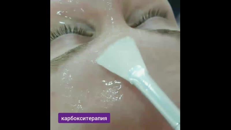 карбокситерапия Бор.mp4