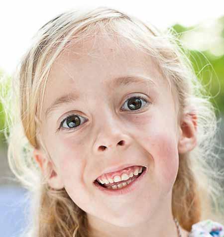 Люди с синдромом Уильямса часто имеют определенные черты лица
